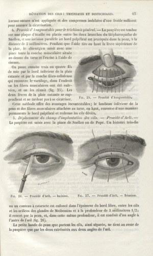 GAŁĘZOWSKI, Ksawery - Traité des maladies des yeux / par X. Galezowski. 2...